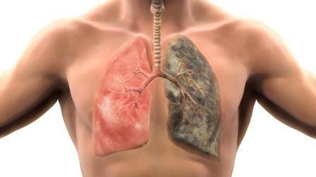 肺部如何排除毒素? 科学家给出了6种方法, 不抽烟的人也应该看看