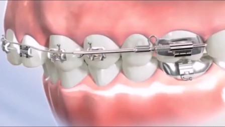 正畸,把牙齿重新排列整齐,弥补先天发育所导致的各种牙不齐
