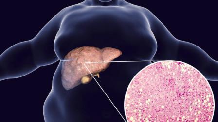 """三伏天是养肝护肝的""""黄金期"""",医生提醒:常按2穴,打造好肝脏"""