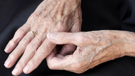 预防老年斑原来这么简单!坚持吃3种食物,到老了很难出现老年斑