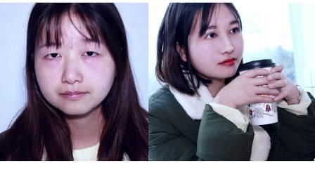 成都双眼皮:肿内泡无神单眼皮全切提肌术后1月恢复 眼睛变大有神逆袭校园美少女