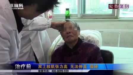 武汉中原医院 武汉神经内科哪家好 湖北脑科医院 治 一氧化碳中毒性脑病最好的医院   一氧化碳中毒性脑病治疗
