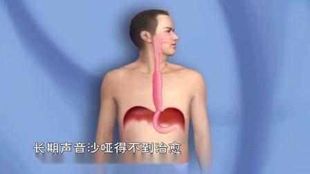 食道癌一发现就晚了,只要吃饭时有这感觉,说明体内已经有癌细胞了