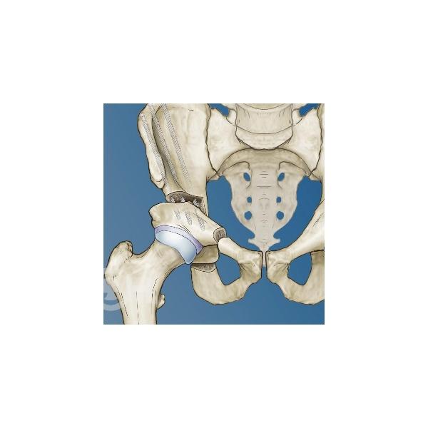 髋关节髋臼发育不良DDH关节置换