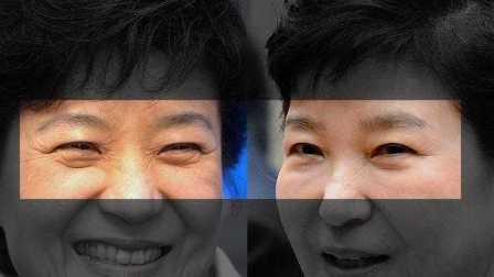 朴槿惠同款胎盘针 真能回春吗?