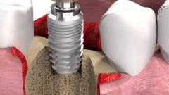 牙齿是怎么种植的?牛人用3D动画模拟全过程,看