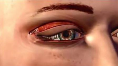 曾经那些割了双眼皮的美女,10年后会变成啥样?