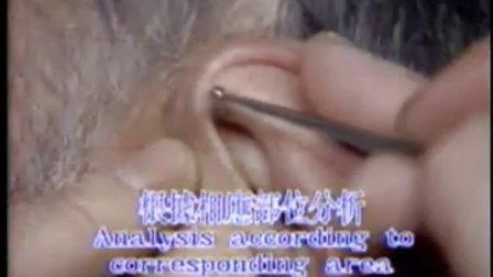 22--耳穴的诊断与治疗