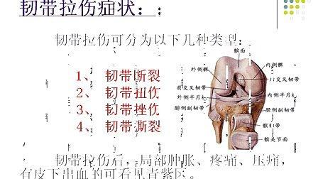 跳广场舞怎样防止韧带拉伤 韧带拉伤该怎么办?