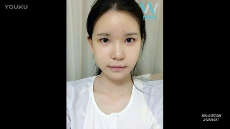 原辰变脸 甩掉大饼脸[www.zrsmd.com]