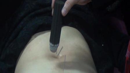 夏连红-夏氏脐诊盘龙针