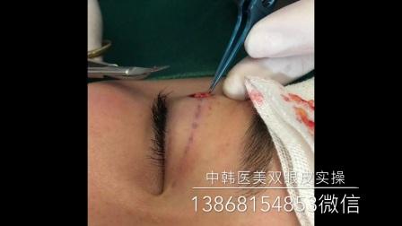 杭州 上海 双眼皮教材 线雕 纳米无痕双眼皮 一针环绕