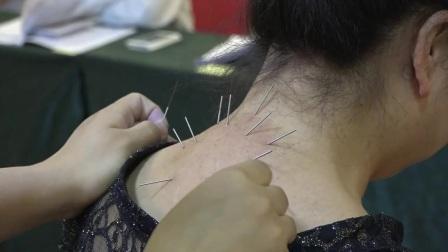 解晓丽-针灸减肥丰胸视频