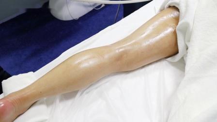 【中科医美】瑞丽健康腿部操作视频、健康管理、理疗保健养生仪器