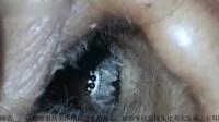 惊魂!实拍印女子耳内意外爬进蜘蛛致其头痛欲裂