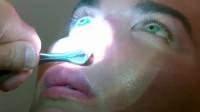 男子一年做三次鼻部整形没法呼吸 医生: 鼻子可能掉下来